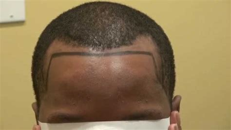 Causes And Treatment Of Alopecia   The Guardian Nigeria