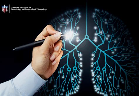 Improving Shared-Decision Making for Lung Cancer Screening